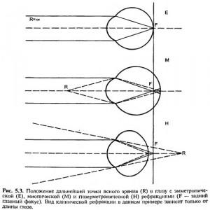Эмметропия астигматическая