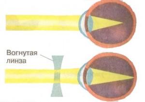 Классификация клинической рефракции глаз