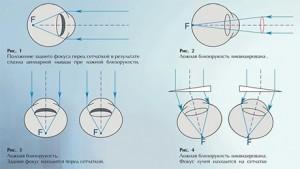 Метод дивергентной дезаккомодации (А. И. Дашевский, 1973)