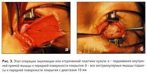Модуль упругости экстраокулярных мышц и его роль при конвергенции глаз