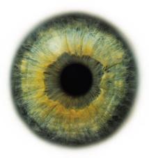 Новая клиническая классификация приобретенной миопии