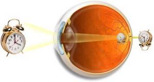 ОУ гиперметропических глаз