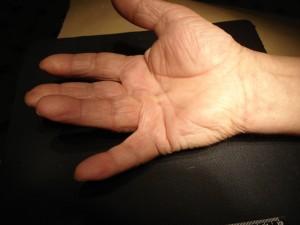 Ограничение пассивной части лечения