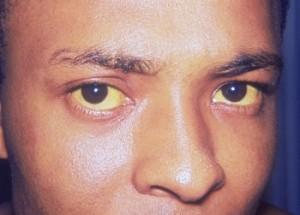 Остаточные микродеформации склеры в заднем полушарии глаза
