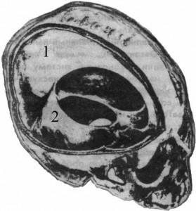"""""""Передний край"""" мозга"""