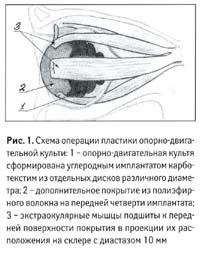 Экстраокулярные мышцы.
