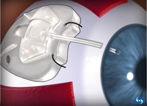 Результаты лечения оптическим затуманиванием