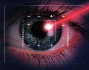 Исправление зрения лазером.