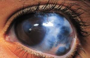 Глаукома.