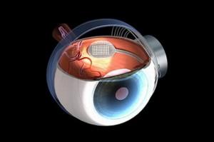 Бионический глаз Argus II.